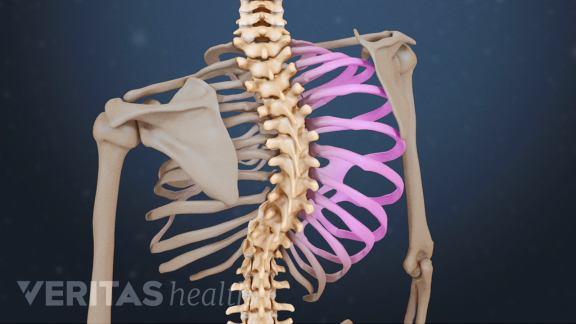 /back-health-blog-ch/Scoliosis