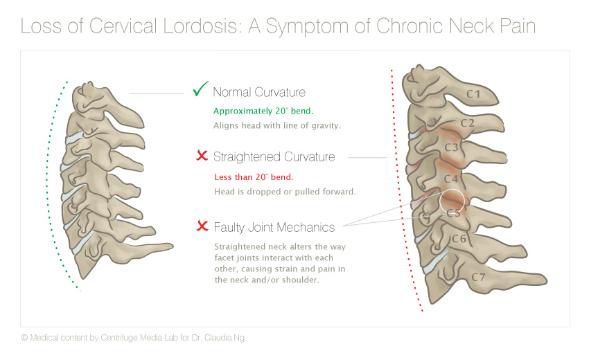 Loss of Cervical Lordosis: A Symptom of Chronic Neck Pain